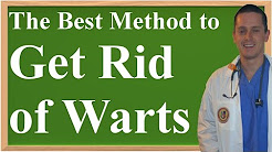 The Best Method to Get Rid of Warts at Home