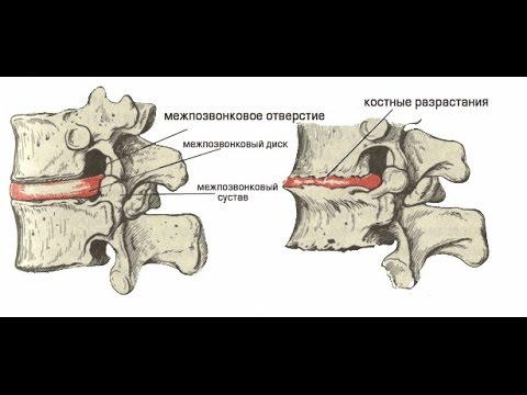 Хондроз шейного отдела позвоночника: симптомы, признаки