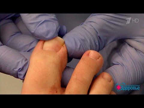 Как вылечить ноготь на большом пальце ноги
