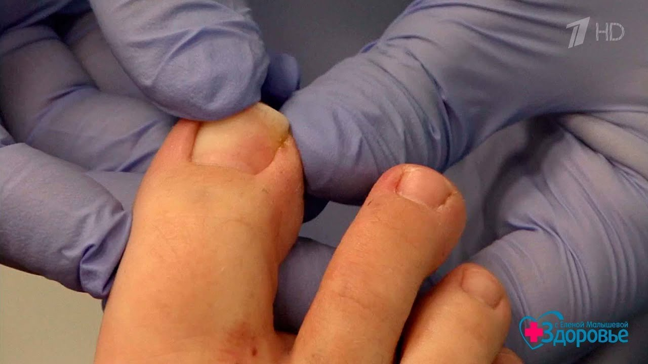 Почему не растет ноготь на большом пальце ноги: в чем причина