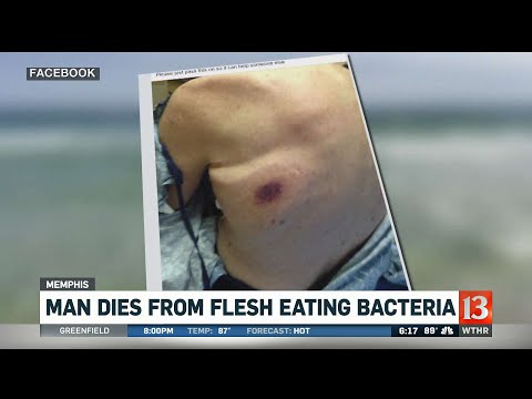 Cindy Scull Mornings - FLESH EATING BACTERIA hit beaches in Florida