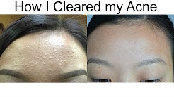 hqdefault - Many Small Pimples Forehead