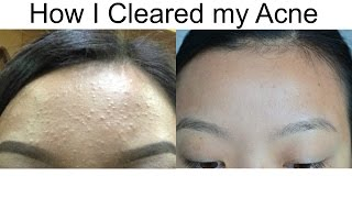 How I Cleared My Acne l (Baby Pimples)