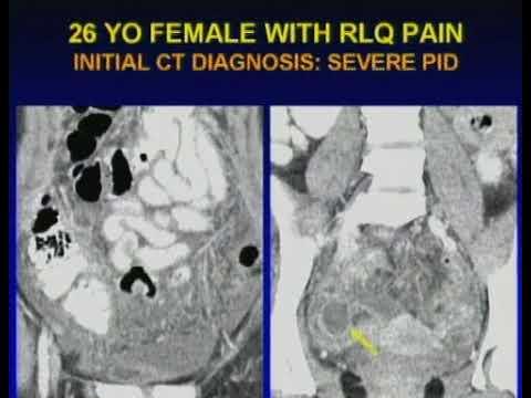 Imaging of Right Lower Quadrant Pain