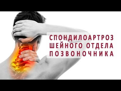 Как лечить спондилоартроз шейного отдела