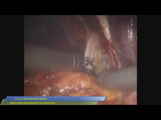 Jose Gregorio Pereira - Robotic Extended Lymphadenectomy for Prostate Cancer