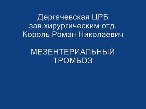Мезентериальный тромбоз Дергачевская ЦРБ