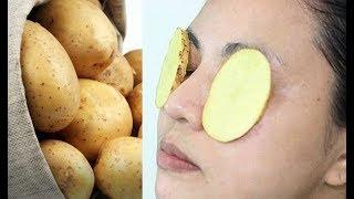 هل تعلم ماذا يحدث لك عندما تضع البطاطس على العيون ؟