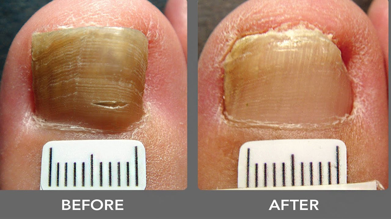 How To Get Rid Of Toenail Fungus Treatment