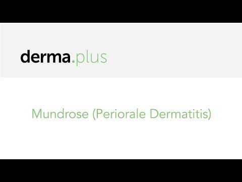 Prof. Dr. Abeck Erklärt Mundrose (Periorale Dermatitis) | Derma.plus