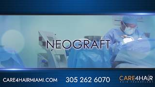 Neograft hair transplant in Miami