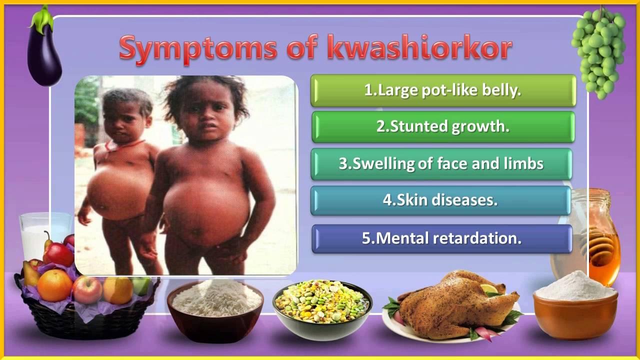 Food Deficiency Diseases List