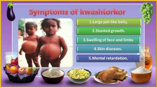 04 Nutrition and their Deficiency Diseases 5th evs