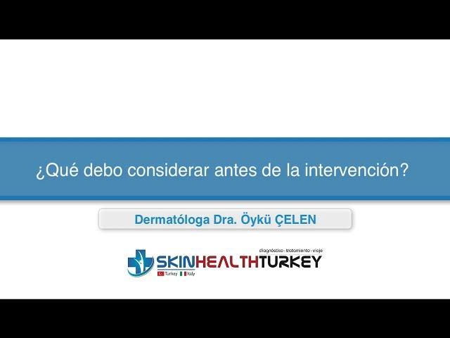 Trasplante Capilar Turquía - ¿Qué debo considerar antes de la intervención? - Dra. Oyku Celen