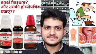 Download Video Anal fissure! Homeopathic medicine for anal fissure?explain? MP3 3GP MP4