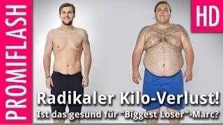 86 Kilo-Verlust: Ist das noch gesund für Biggest Loser-Marc?
