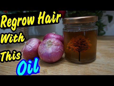 Homemade Onion Oil for Hair Regrowth And Reduce Hair Fall in Hindi