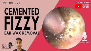 721 - Cemented Fizzy Ear Wax Removal