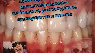 видео Протезирование зубов вкладками: особенности, показания и преимущества
