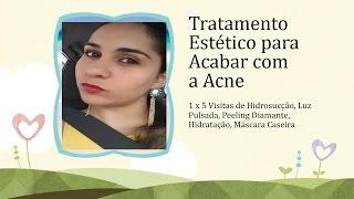 Tratamento Estético para Acabar com a Acne + Recuperação Thumbnail