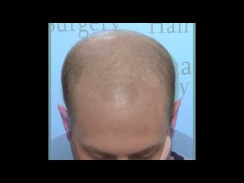 Amazing Hair Transplant Results in 4 Months | Charlotte, NC Hair Surgeon Dr. Vories