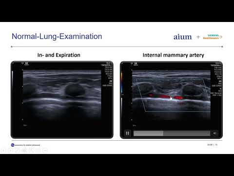 Lung Ultrasound In Patients With COVID 19 Disease