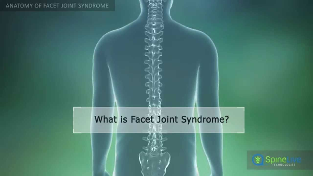 Facet Joint Syndrome Anatomy - YouTube