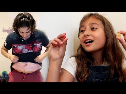 أكل الحلاوة الحمرا وصار عنده كرشة!
