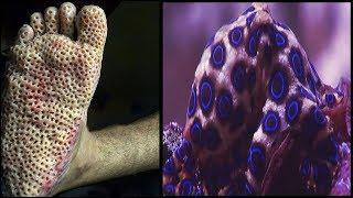 Blue Ringed Octopus Facts | Venomous Ocean Animals Mini Documentary