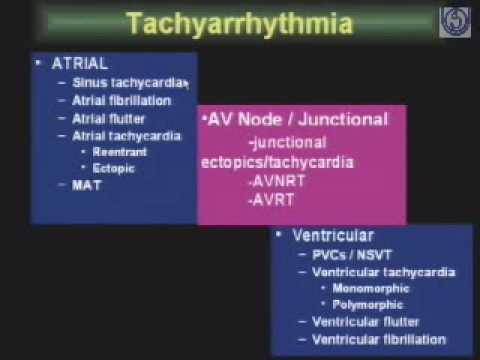 Arrhythmia-1