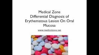 Medical Zone -  Differential Diagnosis of Erythematous Lesion On Oral Mucosa