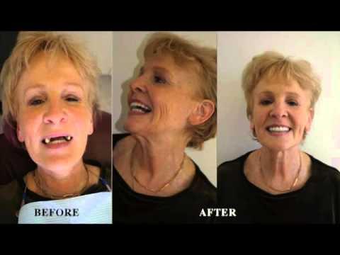 Harpaz Institute Of Dental Implants