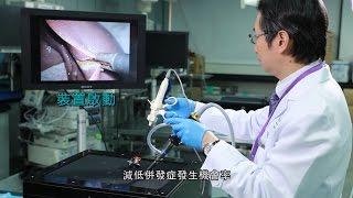 超微型無葉風扇消煙霧 腹腔鏡微創手術更安全