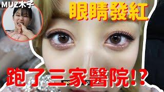 【TWICE】因為眼睛發紅而跑了三間醫院的志效!? 假裝睡覺咬SANA手指的定延