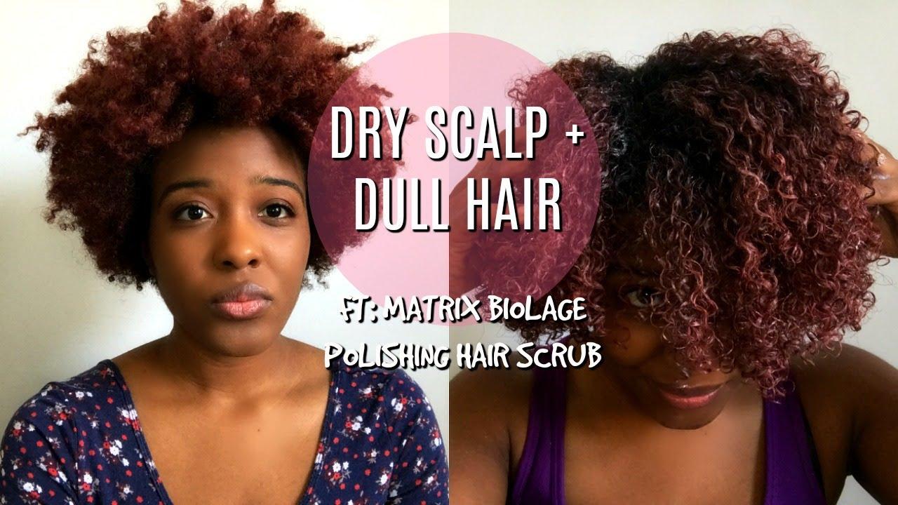3c-4a natural hair dry scalp