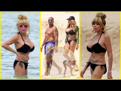 Wendy Williams Claps Back Over Saggy Bikini Body!