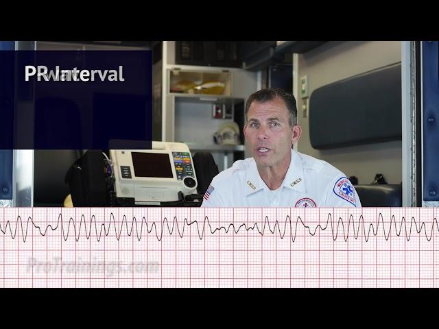 Ventricular Fibrillation (V-Fib) (ECG Rhythm Interpretation)