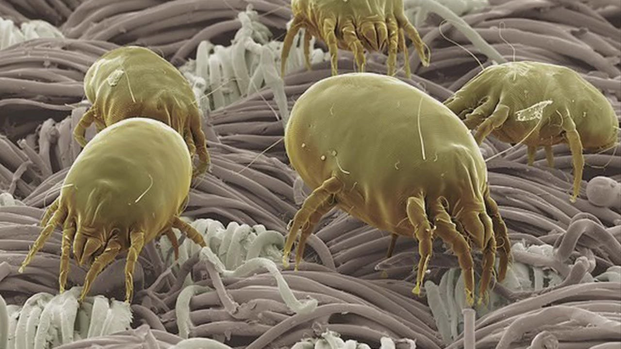 Good Question: What Are Dust Mites? - YouTube