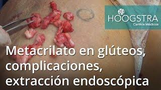Metacrilato en glúteos, complicaciones, extracción endoscópica (16115)