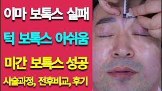 미간 川(내천)자 보톡스 후기 시술과정 by 핑피박