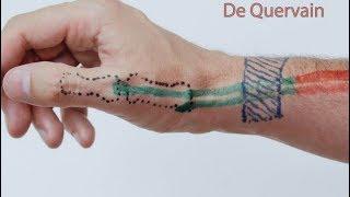 No a na acupuntura após nervo mão dor