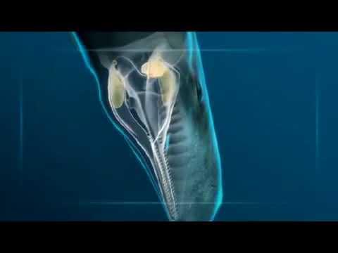 Sperm whale Vs giant squid