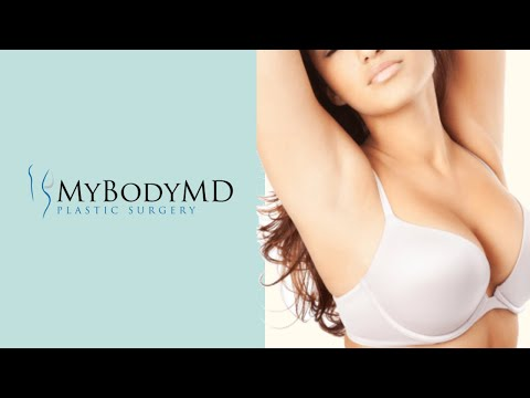 Dr. Rafi S. Bidros with MyBodyMD Plastic Surgery discusses Breast Augmentation Houston, TX.
