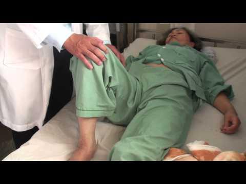 Dấu hiệu Howship Romberg và dấu hiệu cơ bịt