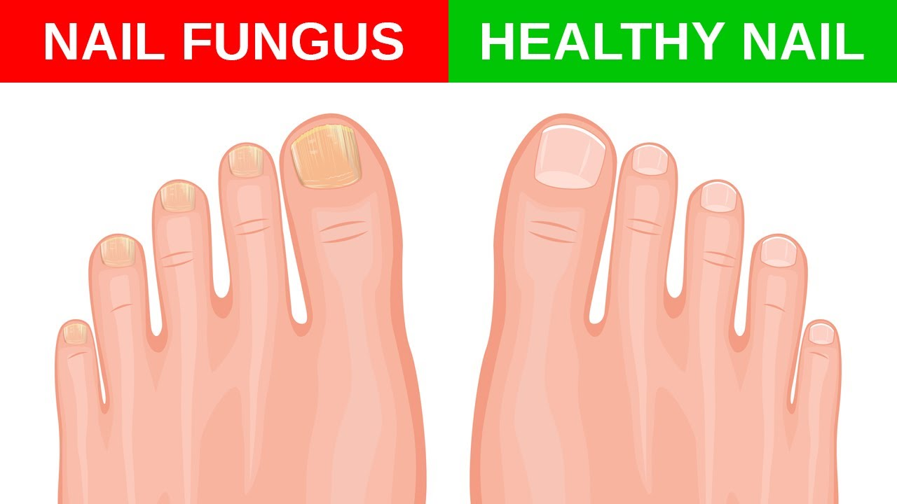 Simple Home Remedies for Toenail Fungus - YouTube