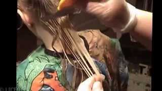 How to get rid of head lice quickly and without chemicals. Natural Lice Removal