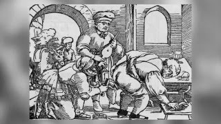 Беспощадная средневековая медицина  TheTopTwig