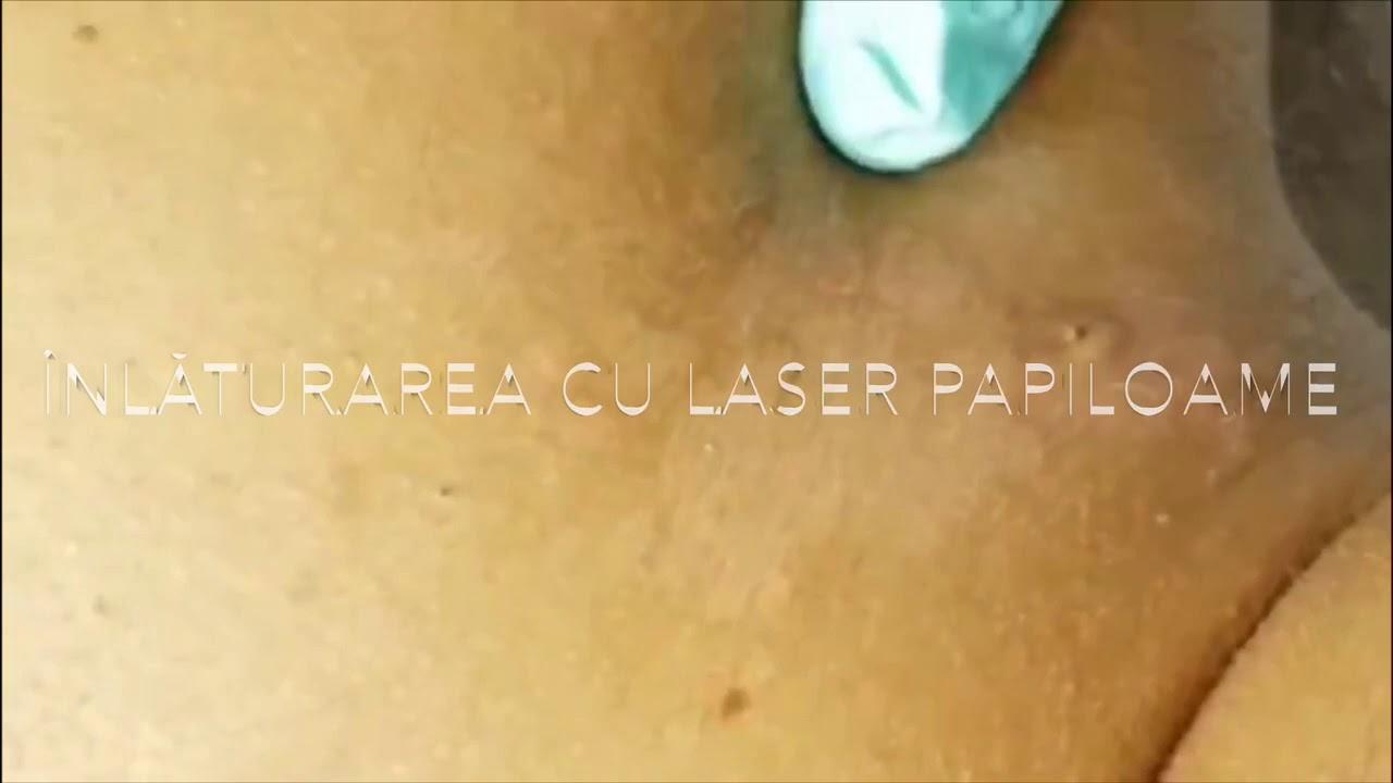 Îndepărtarea papiloamelor cu laser cu p