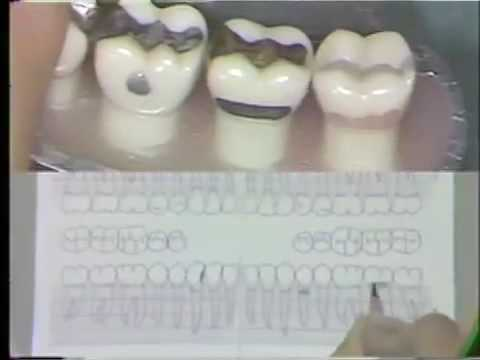 Dental Charting Procedures - YouTube