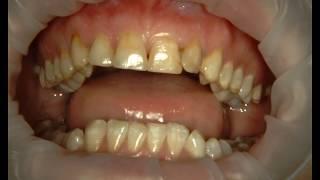 Композитная реставрация зубов при флюорозе (желтые зубы) + исправление скученности.